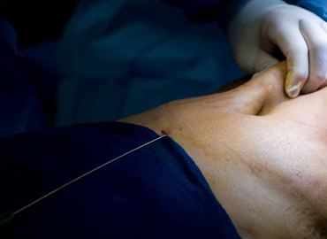 la-plastie-abdominale