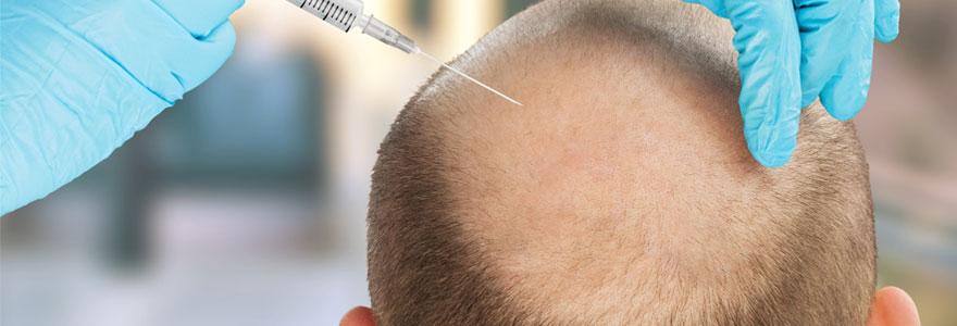 Faire greffer des cheveux en Turquie