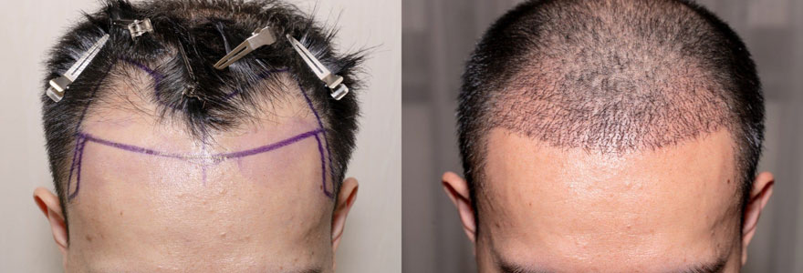 greffer des cheveux